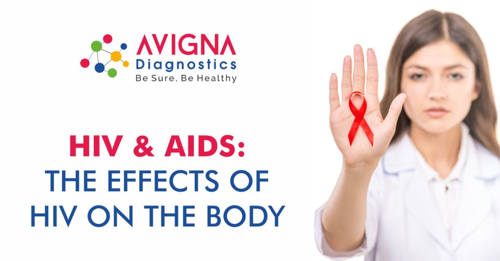 HIV and AIDS - The Effects Of HIV On The Body