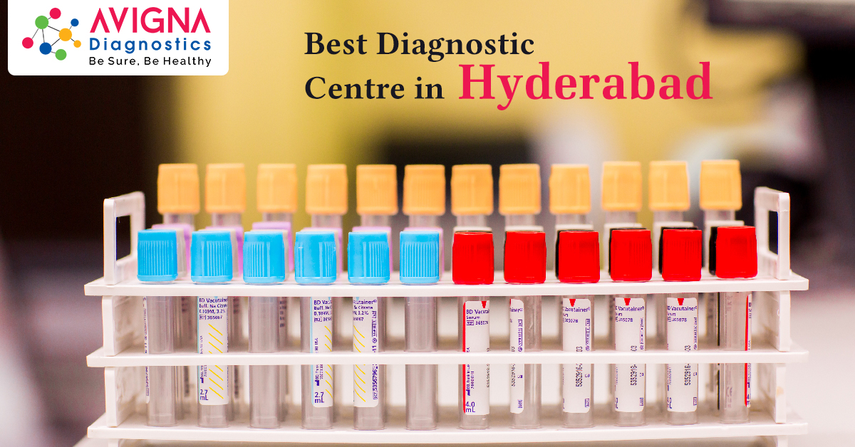 Best Diagnostic Centres in Hyderabad