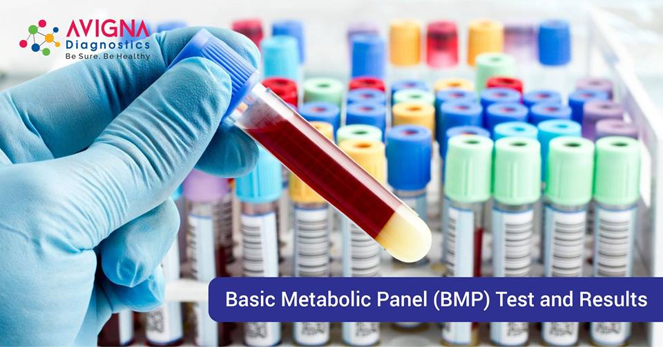 Basic Metabolic Panel (BMP) Test and Results